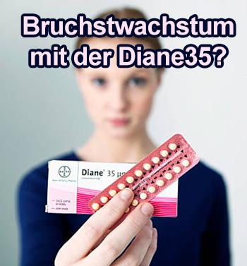 diane35 pille bruchstwachstum